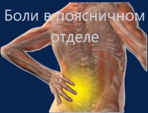 грыжа поясничного отдела - Остеопатия