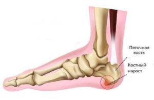 Остеопатия пятой кости, болезнь шинца, апофиз бугра