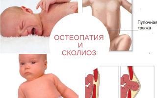 Остеопатия кила: лечение пупочной грыжи — эффективность методики