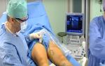 Как правильно лечить при определённой степени варикоза