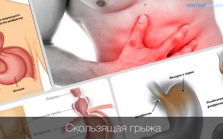Диафрагмальная грыжа и остеопатия | Альтернативный метод лечения