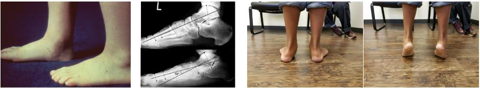 Гибкое плоскостопие, лечение плоскостопие у детей остеопатией
