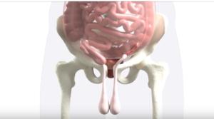 Лечение паховой грыжи без операции. Остеопатия