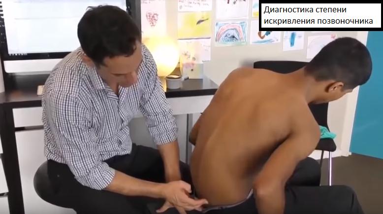 Остеопатия, диагностика сколиоза