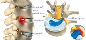 остеопатия и протрузия позвоночника остеопатия
