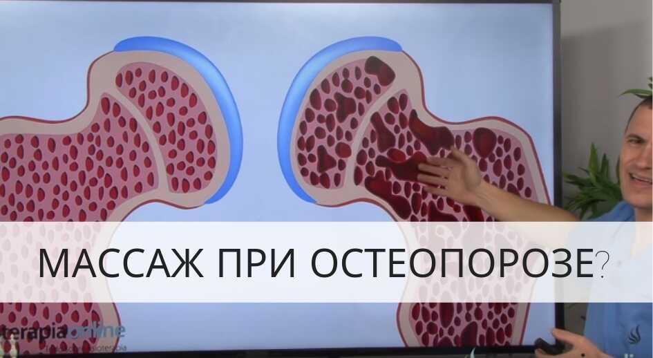 Допустимый массаж при остеопорозе: особенности проведения манипуляции. Массаж при остеопорозе позвоночника и костей: польза и