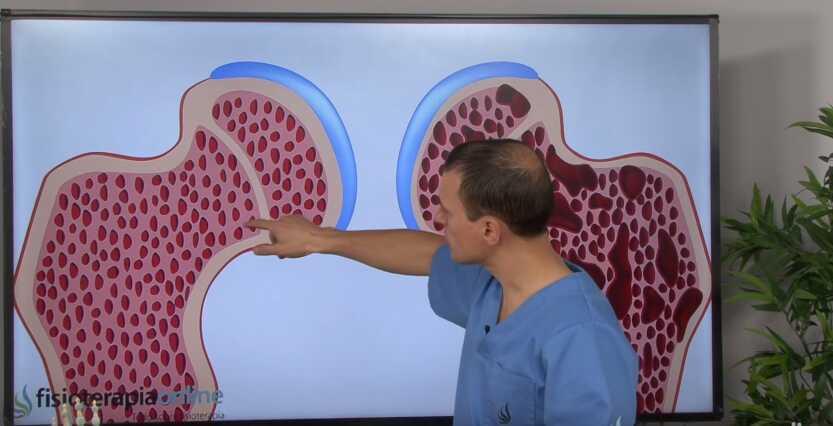 Остеопороз: причины, диагностика и лечение