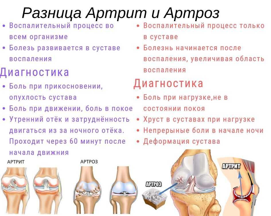 Чем отличается заболевание артроз от артрита фото